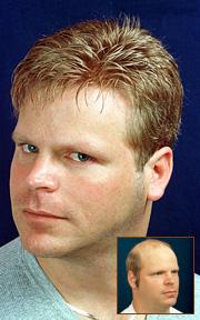 non-surgical hair restoration